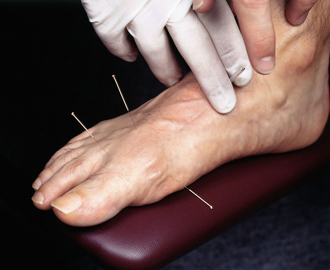 An unruly foot is punished with acupuncture